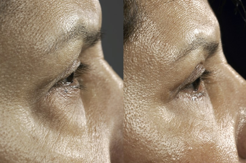 Actual patient of Dr. Devgan. Before & 3 months after upper and lower eyelift