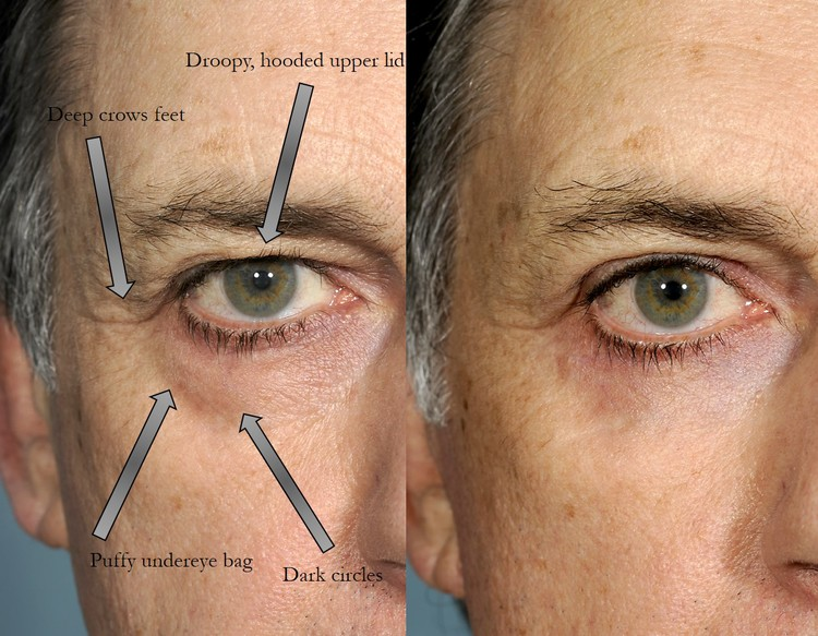 Image result for Blepharoplasty