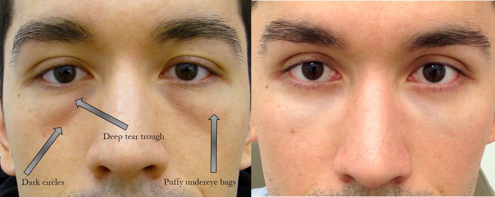 Before & 6 months after lower lid blepharoplasty (eye lift) with hidden incisions