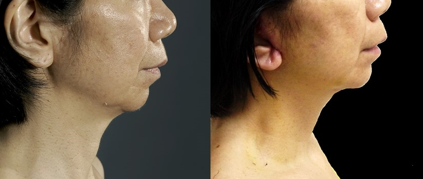 Actual patient of Dr. Devgan, ethnicity: Asian. Before and 1.5 months after short-scar facelift