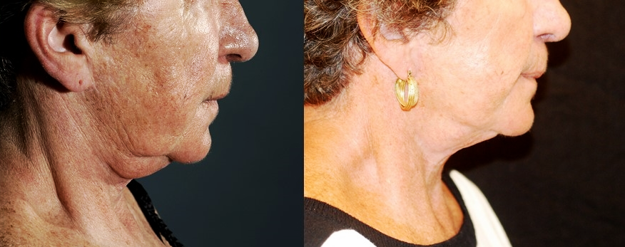 Actual patient of Dr. Devgan. Before and 4 months after facelift