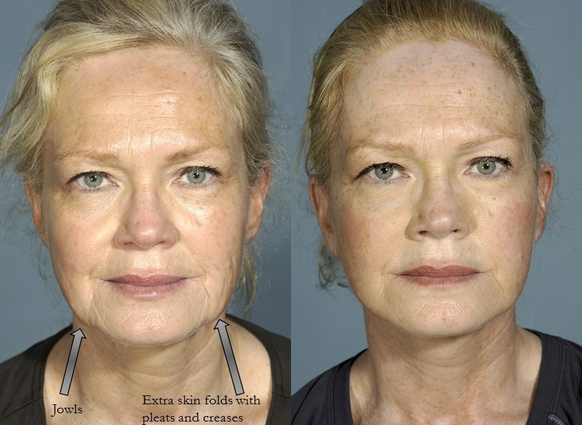 Actual patient of Dr. Devgan, before & 2 months after facelift