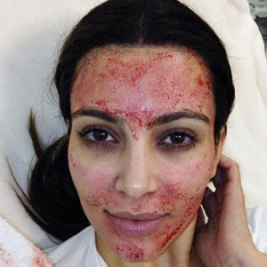 Kim Kardashian, image credit herself,   demonstrating microneedling being combined with growth factor/ PRP treatment
