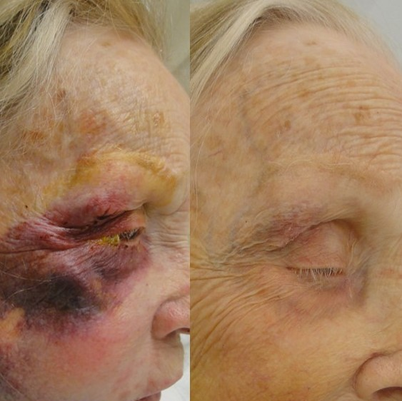 Elderly female  with extensive fractures of the eye and cheek (orbital floor and zygomaticomaxillary complex). Before and 2 weeks after surgical repair.