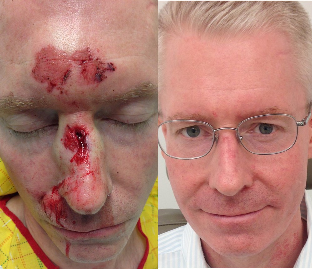 Actual patient of Dr. Devgan, before and after plastic surgical repair of facial laceration (stitches for cut on face)