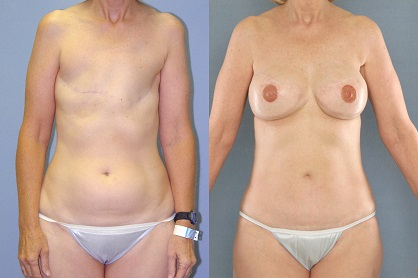 Before and after autologous breast reconstruction (SGAP flaps). Image credit breastcancer.org.
