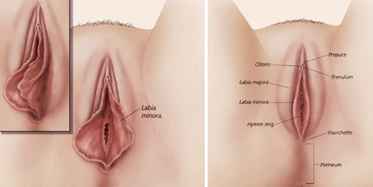 Labiaplasty infographic