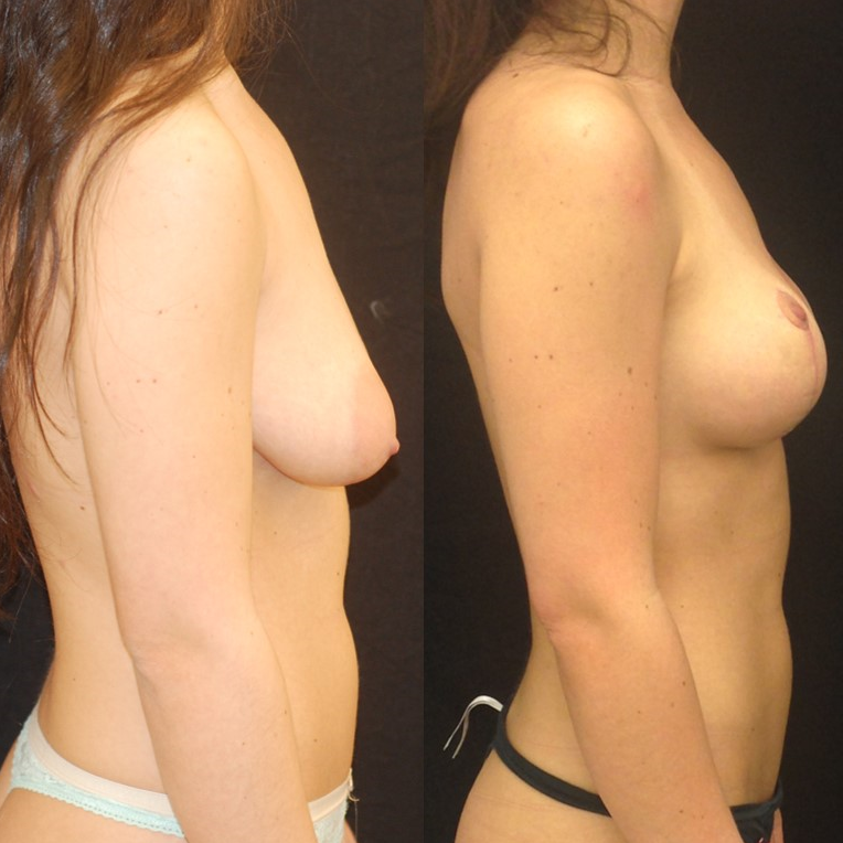 Actual patient of Dr. Devgan, before and 7 weeks after breast lift (mastopexy). Scars are immature and will fade to nearly invisible by 1 year.