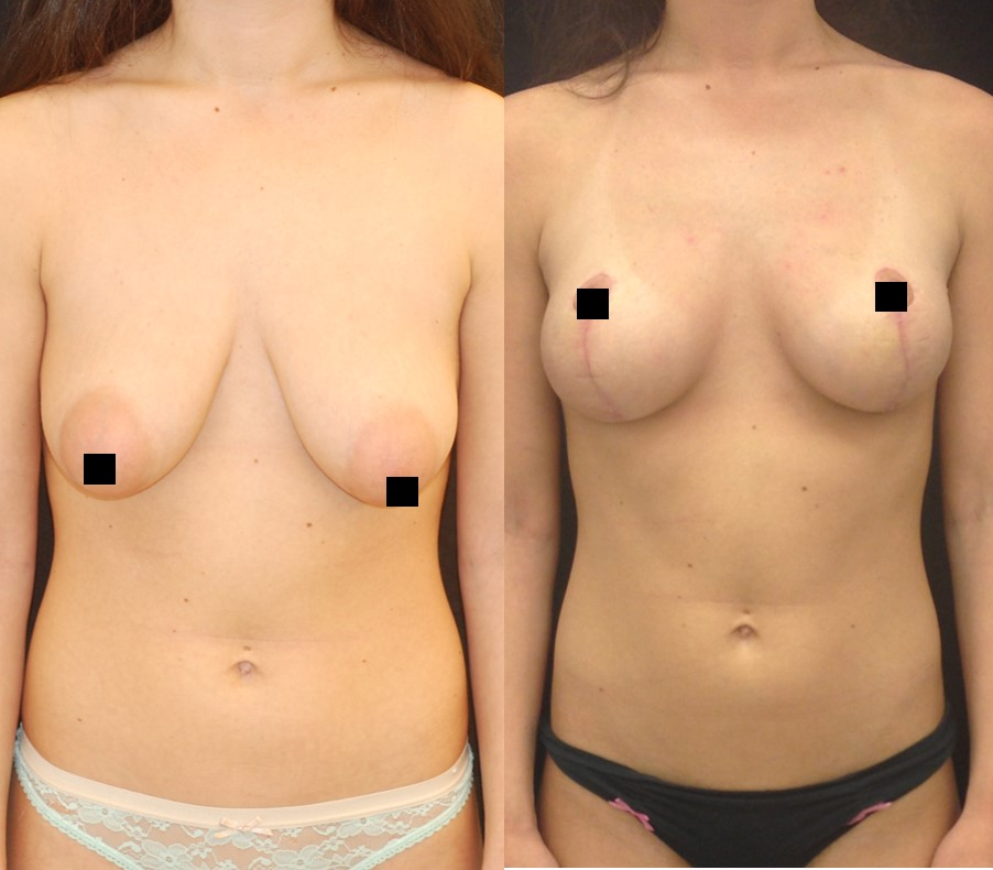 breast lift NYC mastopexy NYC