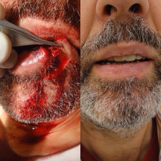 Actual patient of Dr. Devgan, before and after surgical repair of lip laceration.
