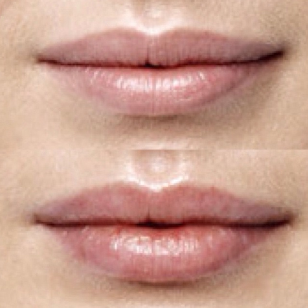 This patient underwent injectable lip filler with very natural results.