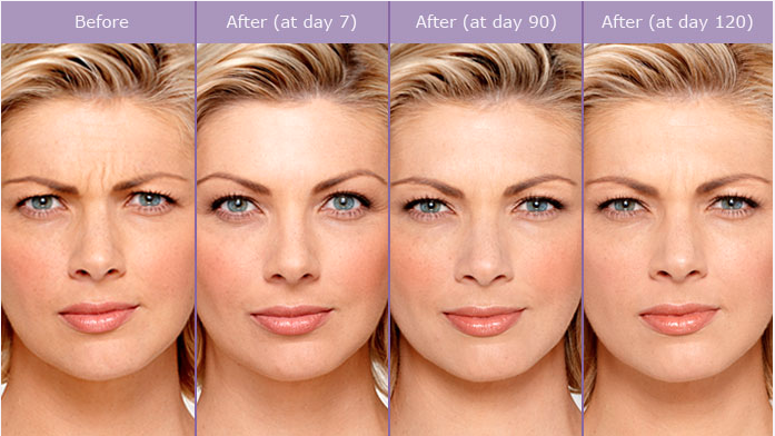 actual patient before and after botox image credit allergan botox lasts 3