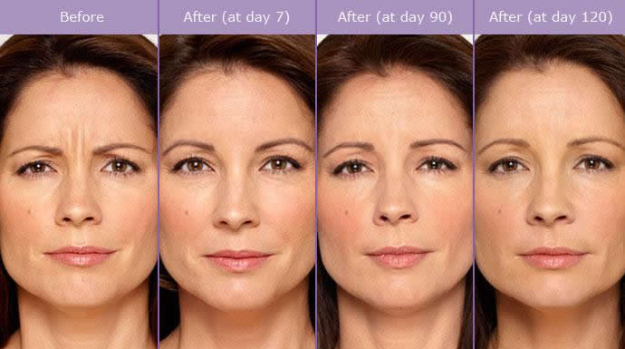 Actual patient, before and after Botox. Image credit Allergan. Botox lasts 3-4 months in most people.