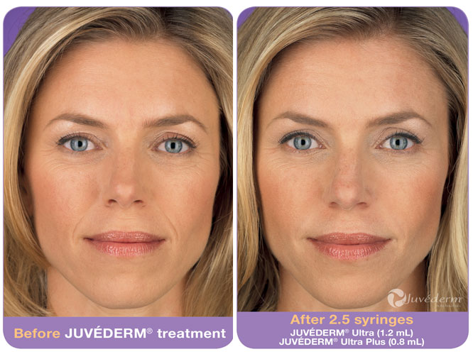 Actual patient, before and after Juvederm to Nasolabial Folds. Image credit Allergan. Juvederm lasts 3-4 months in most people.