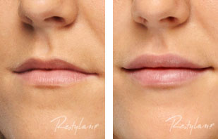 Actual patient, before and after Restylane to lips. Image credit Restylane. Restylane lasts 3-4 months in most people.