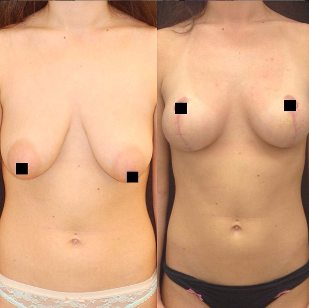 mastopexy NYC breast lift NYC