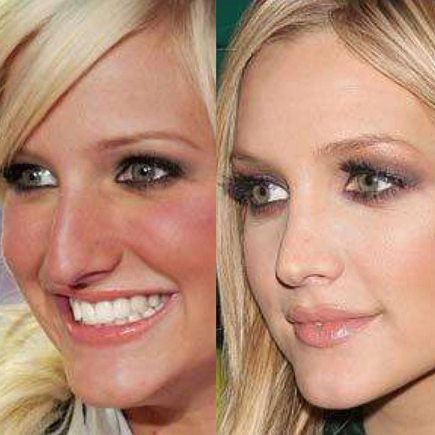 Ashlee Simpson's nose, before and after.