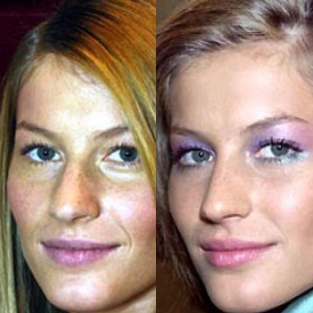 Gisele Bundchen's nose, before and after.