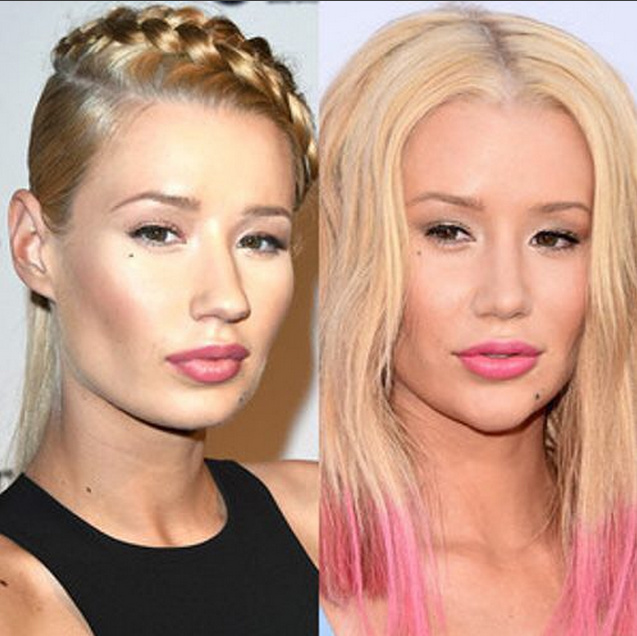 Iggy Azalea, before and after plastic surgery