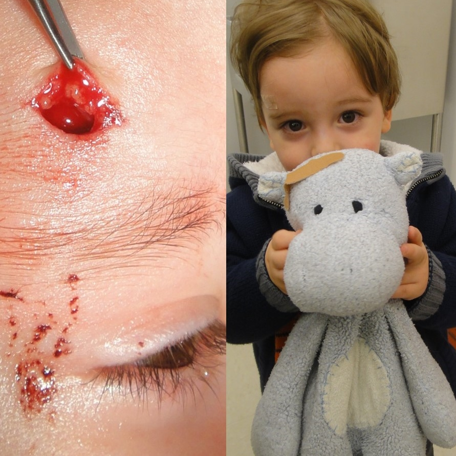 """It wasn't so bad,"" 2 year old facial laceration patient"