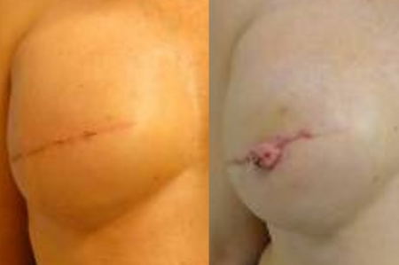 Primary (first time) nipple reconstruction. Actual patient of Dr. Devgan.