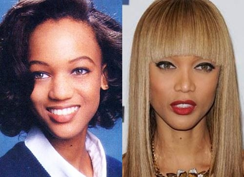 Model Tyra Banks, with improved refinement of the tip of her nose, suggesting tip rhinoplasty.
