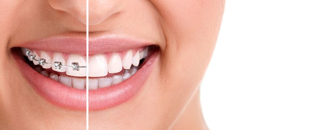 Braces or Invisalign teeth straightening, $10,000-$12,000