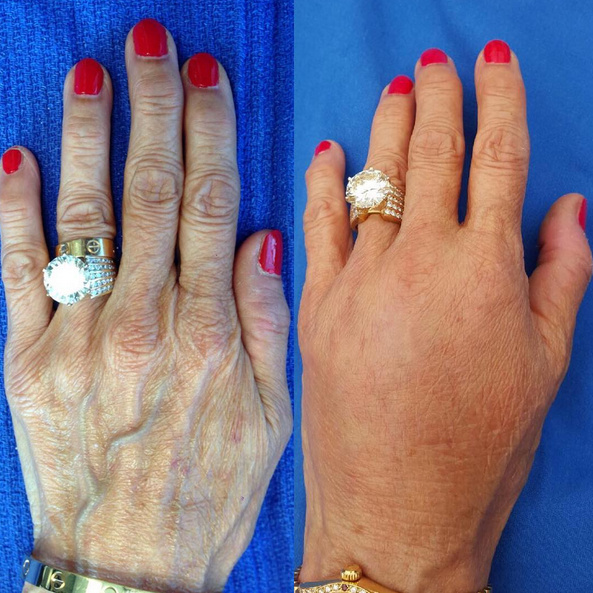 72 year old woman, before and 1 week after hand rejuvenation with Radiesse injectable filler. Radiesse treatment is virtually painless, takes about 2 minutes per hand, and results last for up to 1 year. For more information on Radiesse hand rejuvenation (or hand rejuvenation with Juvederm, Restylane, or autologous fat grafting) by Dr. Devgan, please call 212-452-2400.