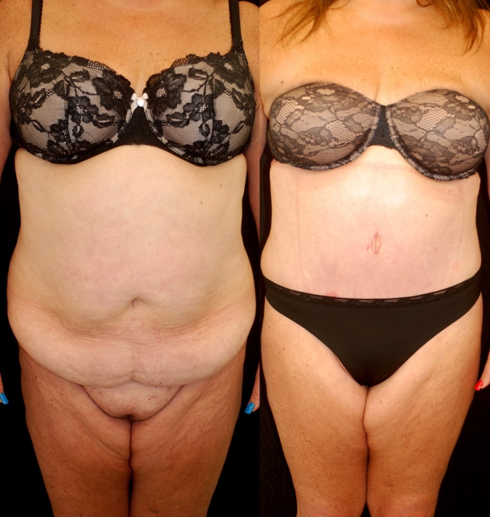 Abdominoplasty And Liposuction After Massive Weight Loss Lara