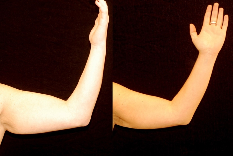 Actual patient of Dr. Devgan, before and after arm liposuction.