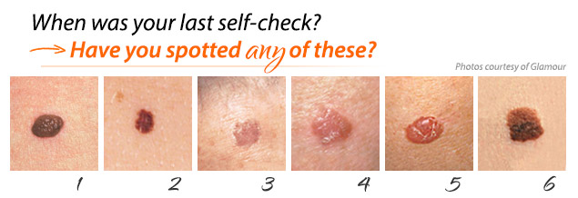 Mole or Melanoma? Tell-Tale Signs in Benign Nevi and ...