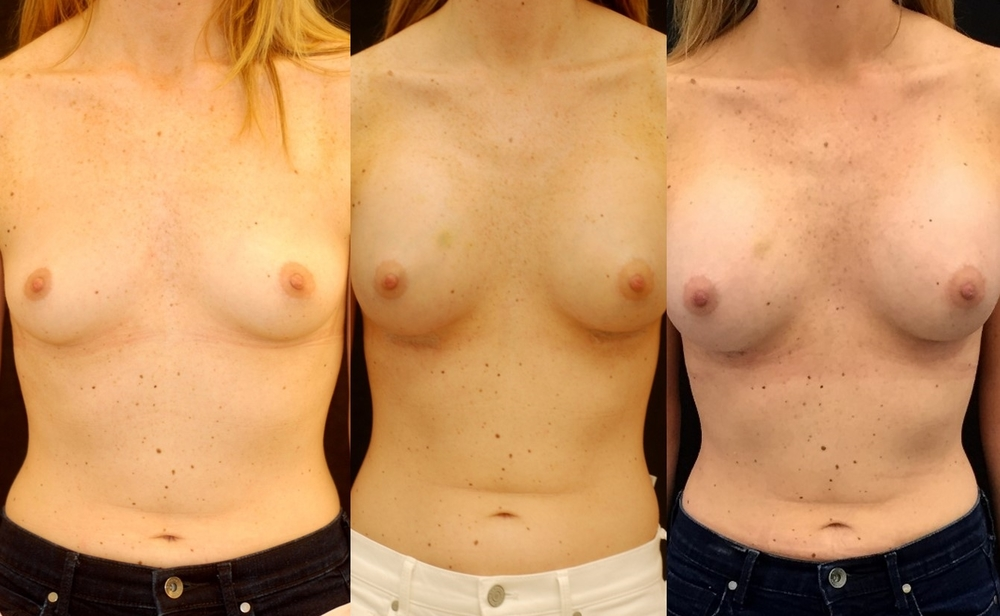 Actual patient of Dr. Devgan, before (left), 1 week after (middle), and 1 month after (right) breast augmentation with moderate plus profile silicone implants.