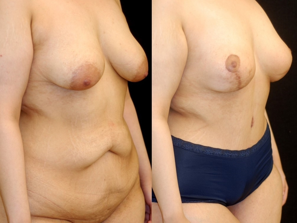 Actual patient of Dr. Devgan, before and after abdominoplasty and mastopexy (breast lift).