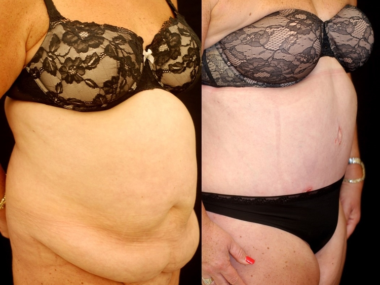 Actual patient of Dr. Devgan, before and after abdominoplasty and liposuction.