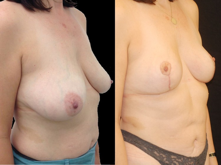 Actual patient of Dr. Devgan, before and after abdominal liposuction and breast lift.