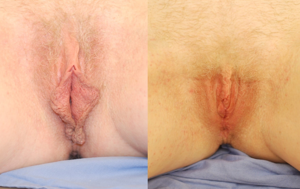 Actual patient of Dr. Devgan, before and 3 months after labiaplasty. Actual patient of Dr. Devgan, before and 3 months after labiaplasty. This is a middle-aged woman with labia minora excess and perineal excess, corrected with a combination of modified wedge technique and direct excision of perineal tissue.