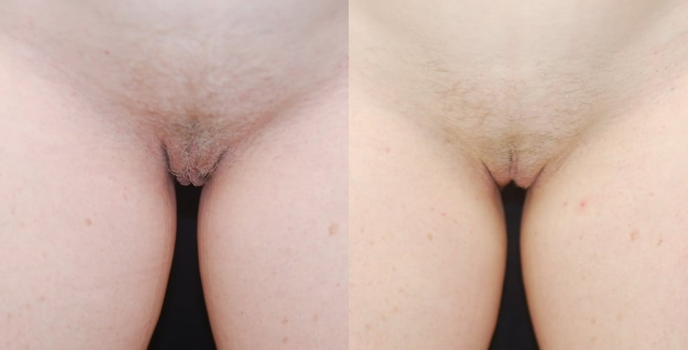 Actual patient of Dr. Devgan, before and 3 months after labiaplasty.