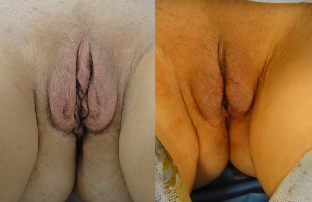 Actual patient of Dr. Devgan, before and immediately after labiaplasty. This is a post-menopausal woman with looseness of the labia majora, exess of the labia minora, clitoral hood excess, and perineal excess, corrected with a combination approach including wedge technique, clitoral hood reduction, perineal excision, and modified edge excision. This is the result immediately following surgery.