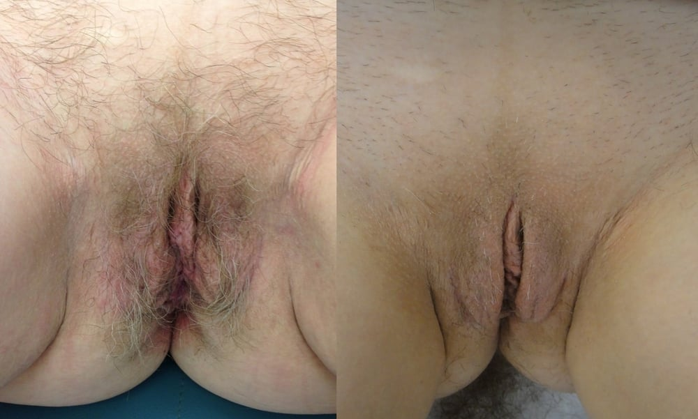 Actual patient of Dr. Devgan, before and immediately after labiaplasty. This is a post-menopausal woman with looseness of the labia majora and excess of the labia minora, corrected with a combined wedge and edge technique. This result is shown immediately after surgery.