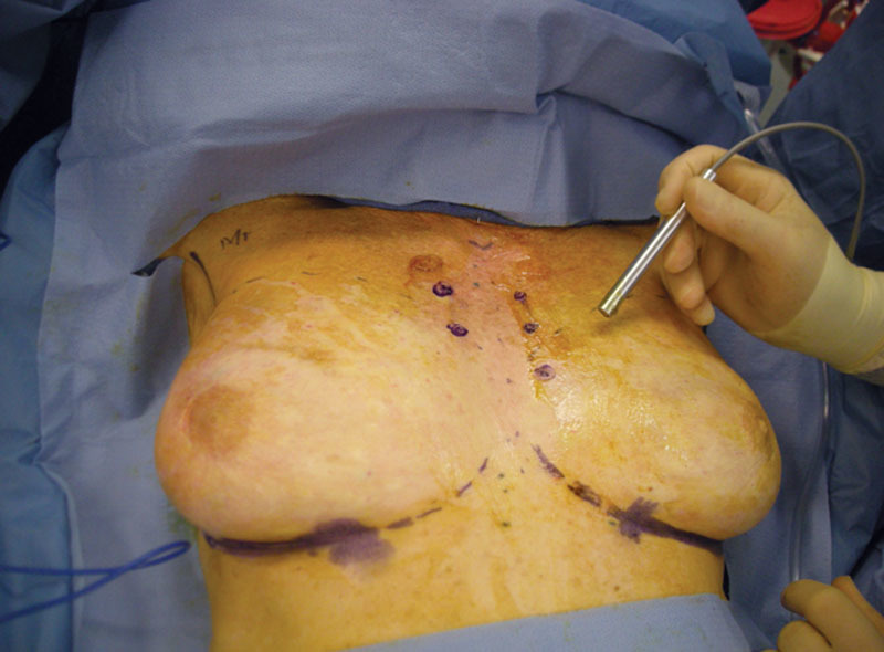 breast cancer reconstruction NYC breast augmentation NYC