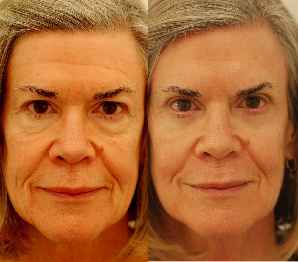 Actual patient of mine, before and just 2 weeks after upper and lower eyelid blepharoplasty