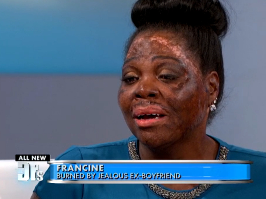 Part 2: Woman Survives Being Burned by a Jealous Ex; click to view segment