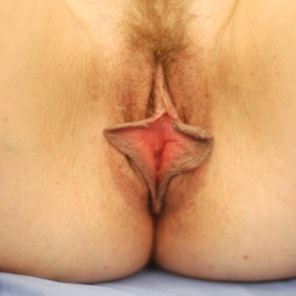 labiaplasty NYC
