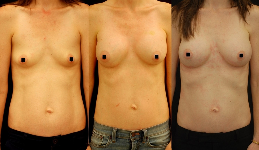 An actual patient of mine, pictured before (left), 1 month after (middle), and 3 months after (right) breast augmentation with silicone implants in the submuscular dual plane.