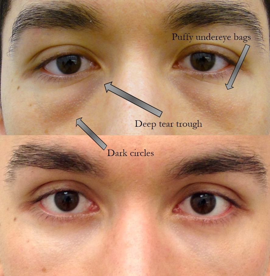 Actual patient of Dr. Devgan, before and after lower lid blepharoplasty