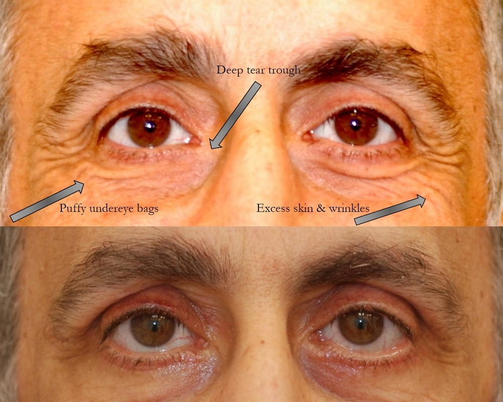 Actual patient of Dr. Devgan, before and after upper & lower lid blepharoplasty