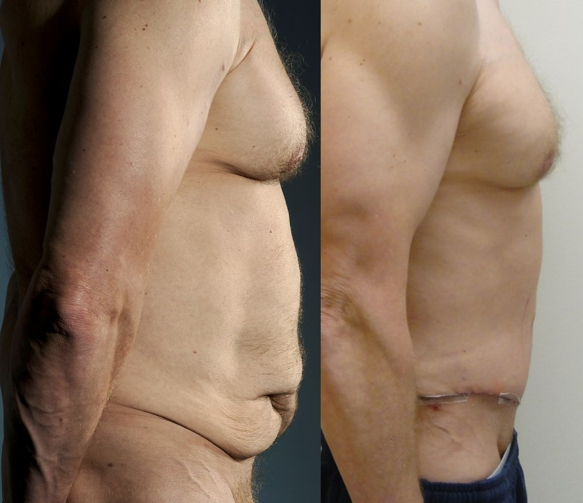 Actual patient of Dr. Devgan, before and after abdominoplasty (tummy tuck). Photo on right is two weeks after surgery.
