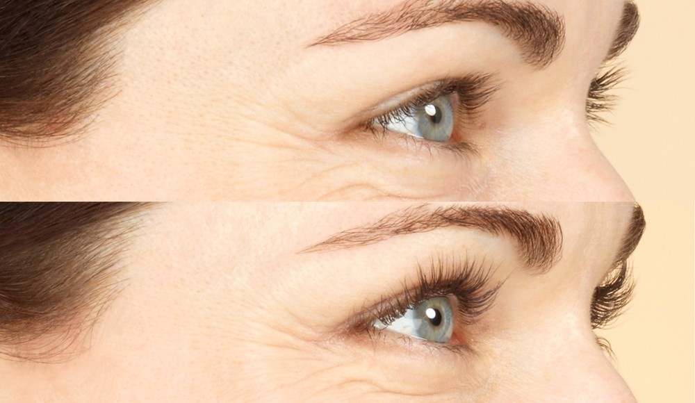 Before and after Latisse, image credit Allergan