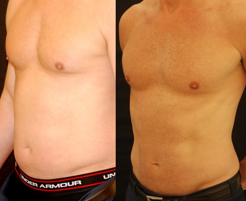 Actual patient of Dr. Devgan, before and after abdominal etching of the six-pack and flanks (abdominal liposculpture/ liposuction)