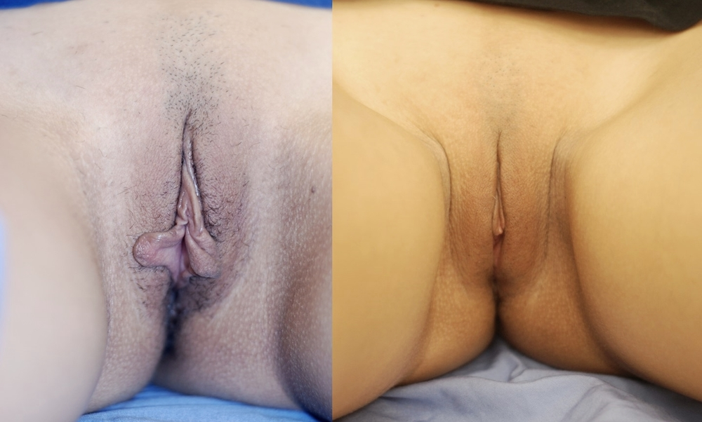 Actual patient of Dr. Devgan, before and 3 months after labiaplasty.   This is a young woman with l  abia minora excess corrected with a modified   wedge technique.